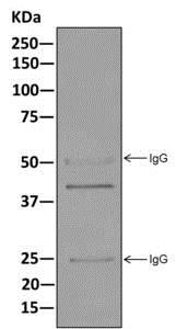 Immunoprecipitation - Anti-SET/TAF-I antibody [EPR12972(B)] (ab176567)