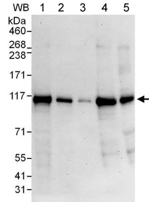 Western blot - Anti-RABEP1 antibody (ab176578)