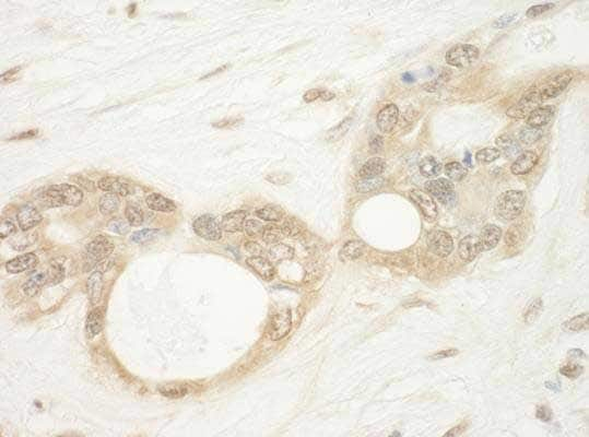 Immunohistochemistry (Formalin/PFA-fixed paraffin-embedded sections) - Anti-WDR5 antibody (ab176588)