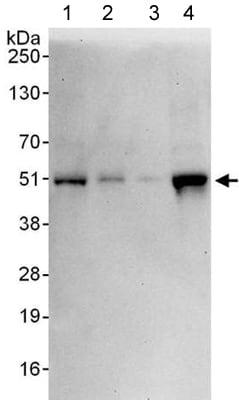 Western blot - Anti-ZNF24 antibody (ab176589)