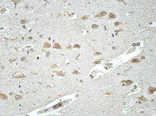 Immunohistochemistry (Formalin/PFA-fixed paraffin-embedded sections) - Anti-ATP6AP1/ATP6S1 antibody (ab176609)