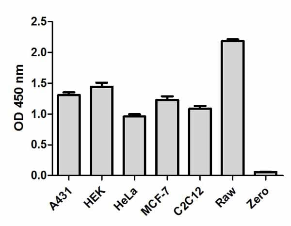 Comparison of total JNK1/2  expression in different cell lines