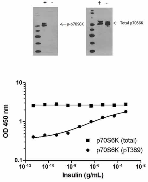 Total p70S6K phosphorylation in response to insulin treatment