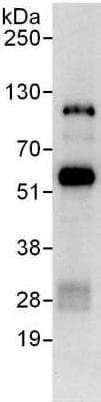 Immunoprecipitation - Anti-ZBTB8A antibody (ab176683)