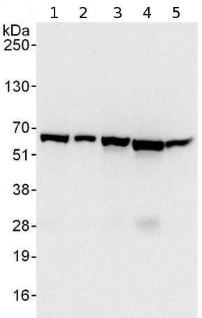 Western blot - Anti-CCT3 antibody (ab176686)