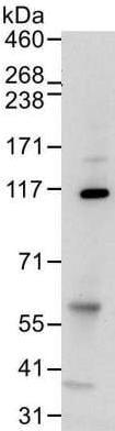 Immunoprecipitation - Anti-Mov10 antibody [15C1B8] (ab176687)