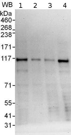 Western blot - Anti-MLX-interacting protein antibody (ab176688)