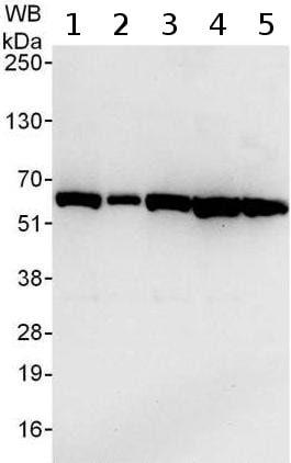 Western blot - Anti-TCP1 theta antibody (ab176691)