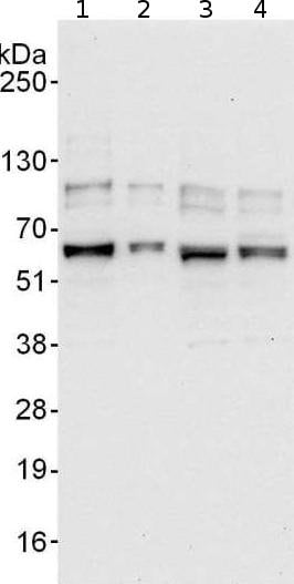 Western blot - Anti-GPATCH4 antibody (ab176693)