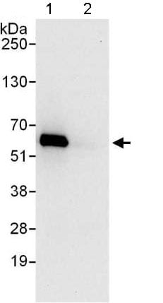 Immunoprecipitation - Anti-TTI2 antibody - C-terminal (ab176698)