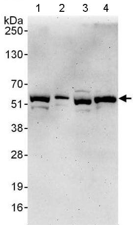 Western blot - Anti-TTI2 antibody - C-terminal (ab176698)