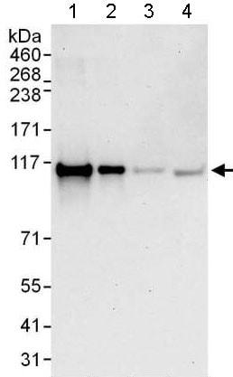 Western blot - Anti-TBC1D2 antibody - N-terminal (ab176701)