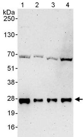 Western blot - Anti-UBE2E2 antibody - N-terminal (ab176703)