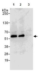 Immunoprecipitation - Anti-SPTLC1 antibody (ab176706)