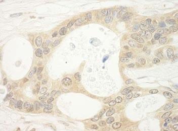 Immunohistochemistry (Formalin/PFA-fixed paraffin-embedded sections) - Anti-FLCN antibody (ab176707)