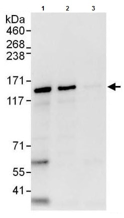 Immunoprecipitation - Anti-ZNF316 antibody (ab176708)