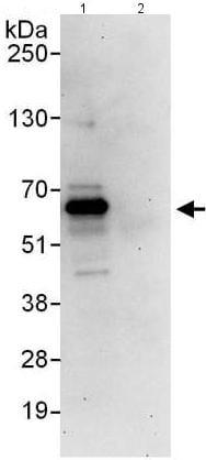 Immunoprecipitation - Anti-ETV3 antibody (ab176717)