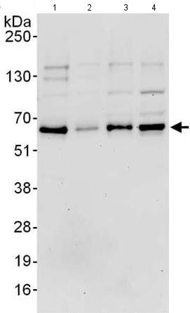 Western blot - Anti-ETV3 antibody (ab176717)