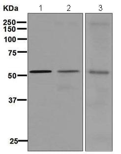 Western blot - Anti-GIRK1 antibody [EPR6363] - BSA and Azide free (ab176720)