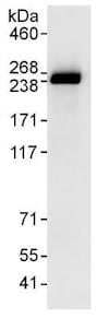Immunoprecipitation - Anti-SMCHD1 antibody (ab176731)