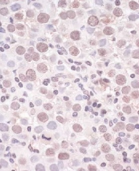 Immunohistochemistry (Formalin/PFA-fixed paraffin-embedded sections) - Anti-SMCHD1 antibody (ab176731)
