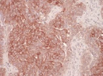 Immunohistochemistry (Formalin/PFA-fixed paraffin-embedded sections) - Anti-DERL1/Derlin-1 antibody (ab176732)