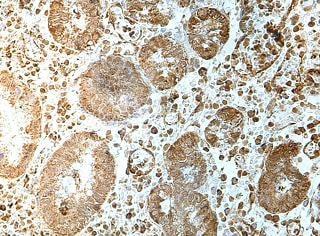 Immunohistochemistry (Formalin/PFA-fixed paraffin-embedded sections) - Anti-FUT9 antibody (ab176794)