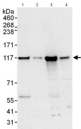 Western blot - Anti-DIS3 antibody (ab176802)