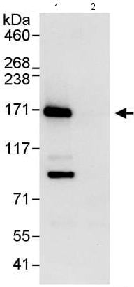 Immunoprecipitation - Anti-Flightless I antibody (ab176805)