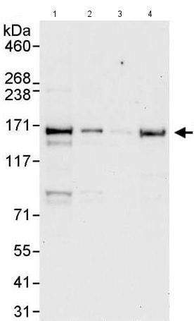 Western blot - Anti-Flightless I antibody (ab176805)
