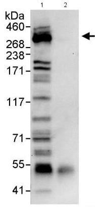Immunoprecipitation - Anti-Chd7 antibody (ab176807)