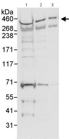 Western blot - Anti-Chd7 antibody (ab176807)