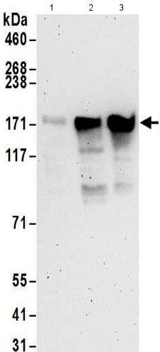 Western blot - Anti-RBM33 antibody (ab176810)