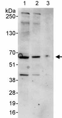 Western blot - Anti-MARVELD2 antibody (ab176812)