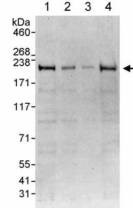 Western blot - Anti-FIP200 antibody (ab176816)