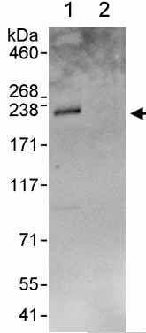 Immunoprecipitation - Anti-FIP200 antibody (ab176816)