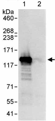 Immunoprecipitation - Anti-DHX16 antibody (ab176819)