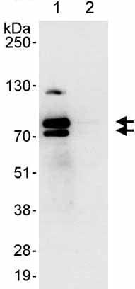 Immunoprecipitation - Anti-ENAH/MENA antibody (ab176820)