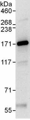 Immunoprecipitation - Anti-YTHDC2 antibody (ab176846)