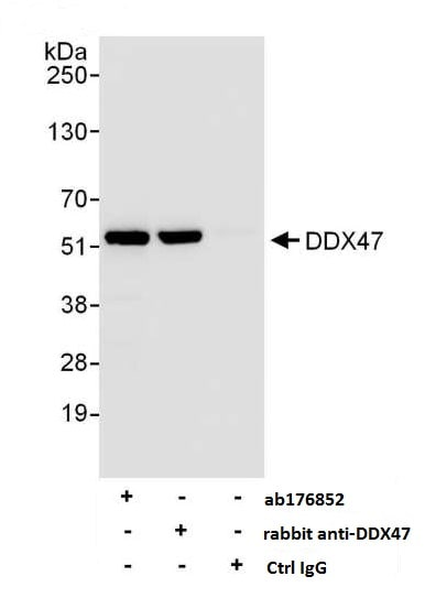 Immunoprecipitation - Anti-DDX47 antibody (ab176852)