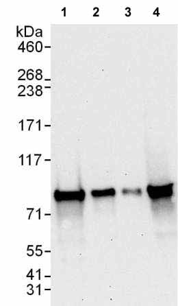 Western blot - Anti-SUV3L1 antibody (ab176854)