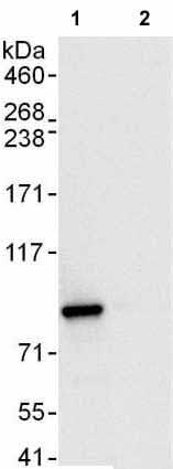 Immunoprecipitation - Anti-SUV3L1 antibody (ab176854)