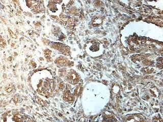 Immunohistochemistry (Formalin/PFA-fixed paraffin-embedded sections) - Anti-ATP6V0A1 antibody (ab176858)