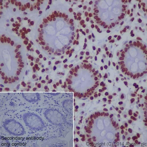 Immunohistochemistry (Formalin/PFA-fixed paraffin-embedded sections) - Anti-Histone H3 (tri methyl K9) antibody [EPR16601] - ChIP Grade (ab176916)