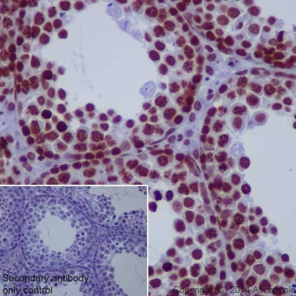 Immunohistochemistry (Formalin/PFA-fixed paraffin-embedded sections) - Anti-Histone H3 (di methyl K36) antibody [EPR16994(2)] - ChIP Grade (ab176921)