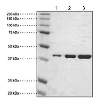 SDS-PAGE - Recombinant Human BRG1 protein (Tagged) (ab176931)