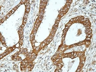 Immunohistochemistry (Formalin/PFA-fixed paraffin-embedded sections) - Anti-VAPA antibody (ab176995)