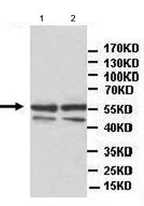 Western blot - Anti-ATPB antibody (ab177072)