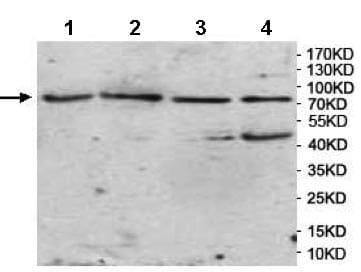 Western blot - Anti-AMACO antibody (ab177103)