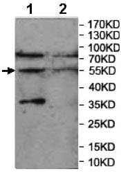 Western blot - Anti-CHRNA9 antibody (ab177119)